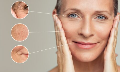 Why Sculptra Treatment Might be Right for You
