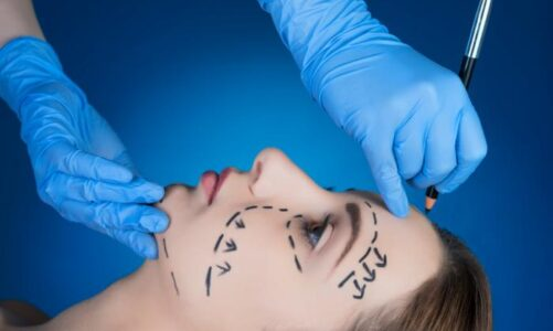 What You Should Know About The Facelift Surgery