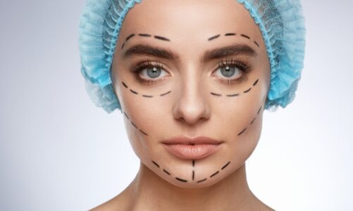 Combining Facelift And Eyelid Surgery For Better Results